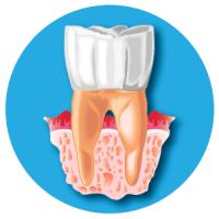 periodontite tondo pieno